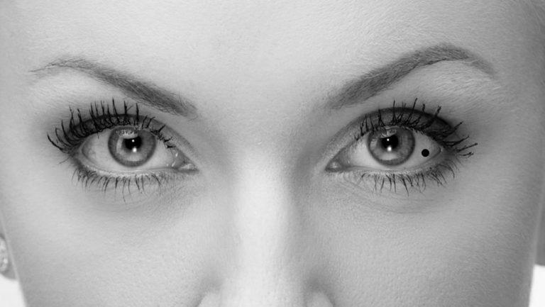 女性の目 目尻側の白目の真ん中にあるほくろ