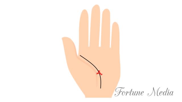 生命線にトライアングル三角紋がある人 障害線 手相